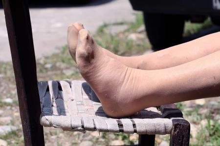 swollen: swollen feet of an Elderly person