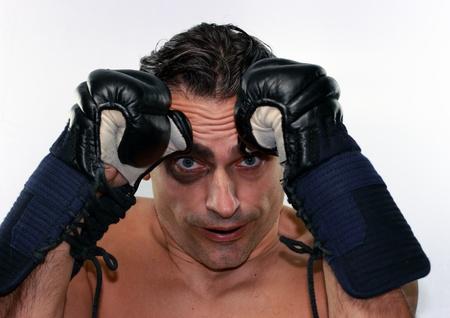 Funny boxer man with black eye on white background