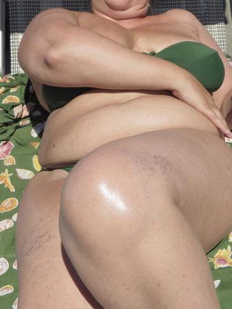 middle age over weight woman in bikini
