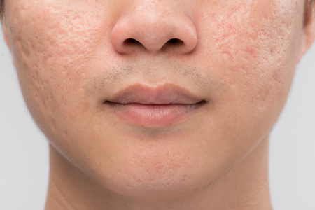 Man with oily skin and acne scars isolated on white background