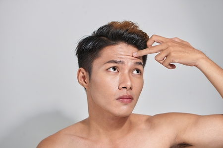 Attractive youthful male with trouble skin.