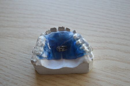 Modern orthodontic teeth alignment plate made of colored plastic with metal clamps