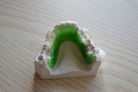 Modern orthodontic teeth alignment plate made of colored plastic with metal clamps Stock Photo