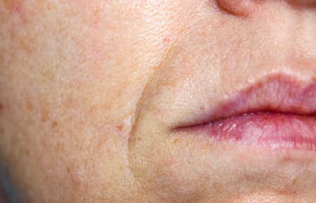 Nasolabial folds and enlarged pores on the female face. Skin care in 40 years. Close-up.