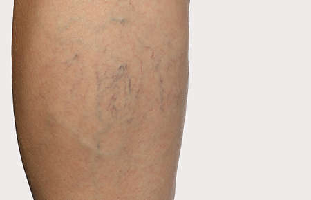 telangiectasia and spider veins on the leg Stock Photo