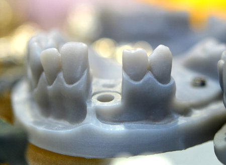 Collapsible jaw model wih teeth and holes for implant crown abutment printed on 3d printer photopolymer material. Stereolithography 3D printer, technology of liquid photopolymerization under UV light.