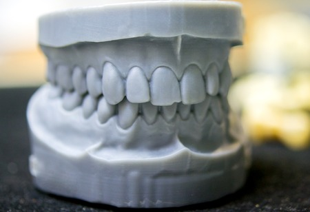 Upper and lower jaw of a man printed on a 3d printer of photopolymer. Stereolithography 3D printer, technology of liquid photopolymerization under UV light. Modern medical technologies