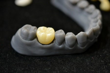 The lower jaw of a man, created on a 3d printer from a photopolymer material. Stereolithography 3D printer, technology of liquid photopolymerization under UV light. Modern medical technologies