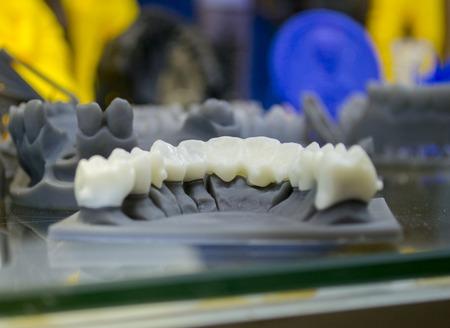 Der Unterkiefermann, geschaffen auf einem 3d Drucker von einem photopolymer Material. Stereolithographie-3D-Drucker, Technologie der flüssigen Photopolymerisation unter UV-Licht. Moderne additive und medizinische Technologien Standard-Bild - 87482423