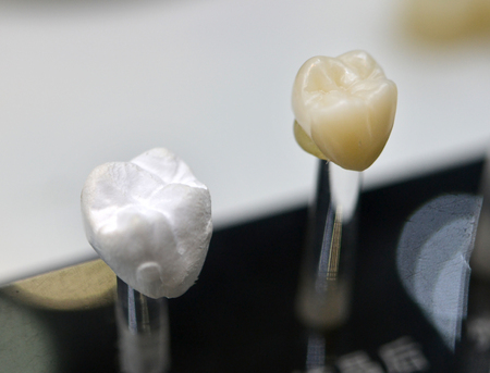 several models artificial human dental crown close-up
