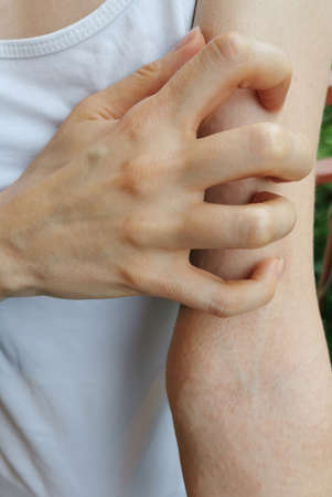 Woman scratch their itchy arm with their hand. Hand food allergy. Itchy hand with tiny red pimples
