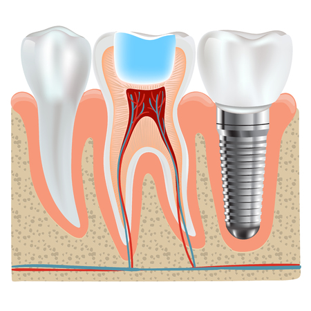 Dental implant and real tooth anatomy closeup
