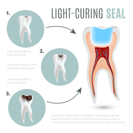 Realistic medical poster with stages of tooth decay and light-curing seal Çizim