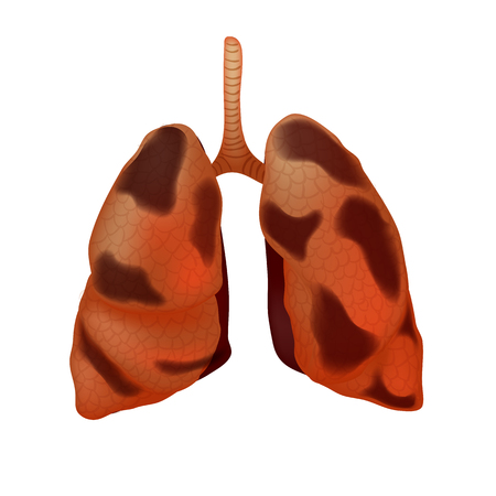 Realistic human sick lungs isolated on white background.