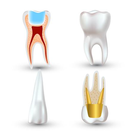 dientes sucios: Vector conjunto de diente 3d limpio y sucio realista aislado sobre fondo blanco. Concepto de salud dental. Cuidado bucal, restauración de los dientes