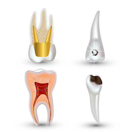 Vector set of 3d realistic clean and dirty tooth isolated on white background. Dental health Concept. Oral Care, teeth restoration