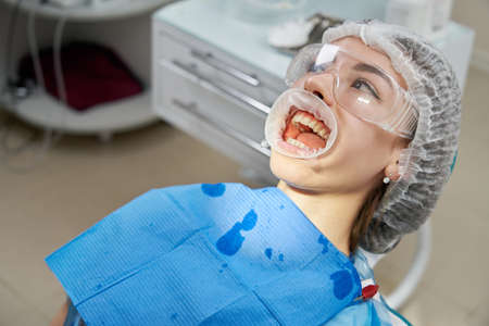 Patient getting dental treatment at dentist office with dental rubber dam protection Zdjęcie Seryjne