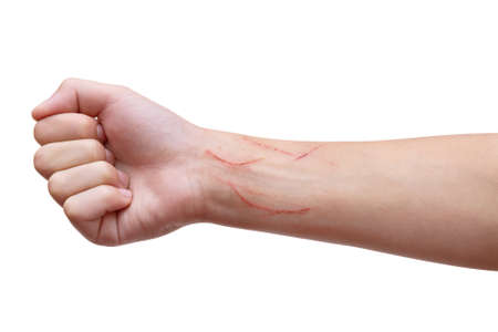 Child's hand scratched by cat on the wrist, palm clenched. Isolated on white background.