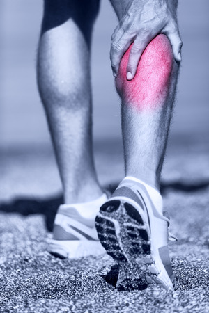 leg calf injury: Muscle injury - Man running clutching calf muscle after spraining it while out jogging on the beach. Male athlete sport injury.