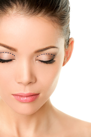 plastic surgery: Asian monolids plastic surgery concept - woman with correction marks to have double eyelids made. Stock Photo