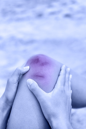 Sport injury - painful knee wound accident. Young woman holding knee in pain after fall causing blood, minor cuts and bruises. Blue and red effect to enhance the medical condition.