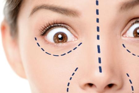 neus: Plastische chirurgie grappig concept - eng gezicht schrikken vrouw. Close-up van vrouwelijke gelaatstrekken uiten verrassing en schok voor medische procedure. Chirurgische merk lijnen onder de ogen, neus en rond de mond.