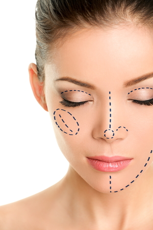female face closeup: Plastic surgery lines on Asian woman face. Closeup of female adult with closed eyes with pencil marks on skin for cosmetic medical procedures. Surgical mark lines on eyes, nose, cheek, and jaw.