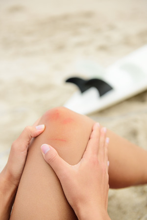 Sport injury - painful knee wound surfing accident. Young woman surfer holding knee in pain after surfboard surf injury and bruises. Blue and red effect to enhance the medical condition. Stock Photo