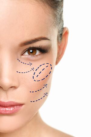 Cirugía plástica Marca de procedimiento de belleza quirúrgica de aumento de pómulos de mujer asiática dibujando en la cara. Foto de archivo