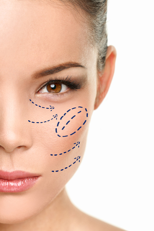 Plastic surgery Asian woman cheekbone augmentation surgical beauty procedure marks drawing on face.