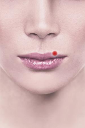 Ampolla roja de la ampolla del herpes labial en los labios superiores de la mujer con herpes. Ilustración de diseño de concepto.