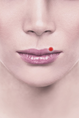 Cold sore blister red pimple on upper lips of woman with herpes. Design illustration for concept.