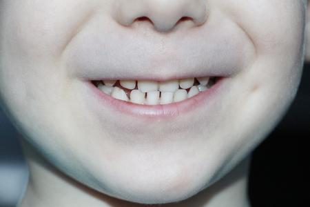 Smile of a little boy. Baby teeth baby. Clean, beautiful teeth of a boy. Care for baby teeth. Foto de archivo