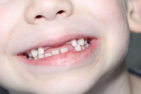 The boy smiles, his milk teeth are visible. Loss of milk teeth. The boy has no upper central teeth. The loss of milk teeth in children.