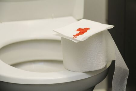 A roll of toilet paper with blood lies on the toilet. The concept of sexual diseases. Blood on toilet paper. Restroom. 版權商用圖片