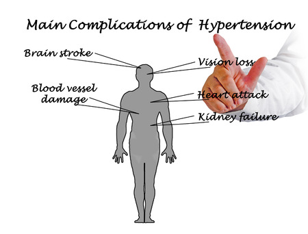 complications: main complications of hypertension Stock Photo