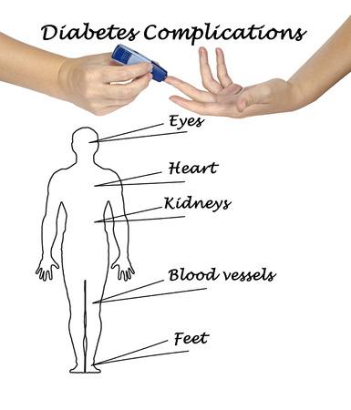 factors: Diabetes risk factors Stock Photo