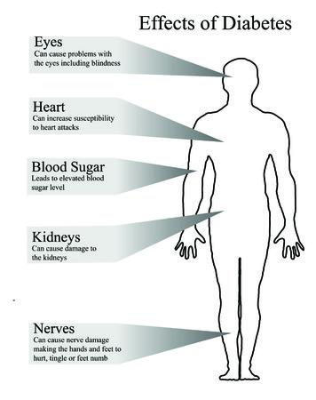 enfermedades del corazon: Efectos de la diabetes Vectores