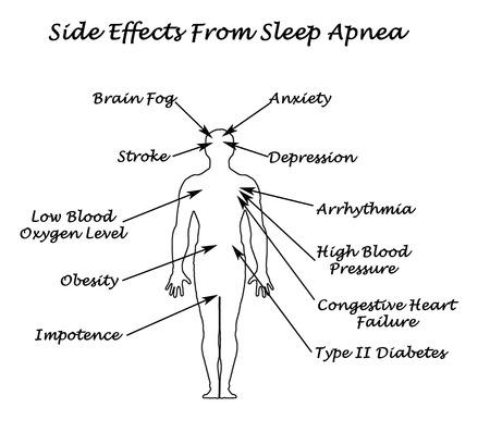 sleeping: Sife Effects From Sleep Apnea  Stock Photo