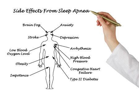 Sife Effects From Sleep Apnea  Stock Photo