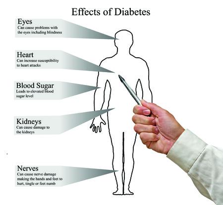 Auswirkungen von Diabetes Standard-Bild