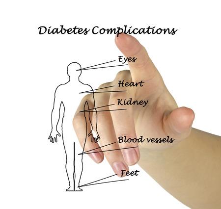 complications: diabetes complications