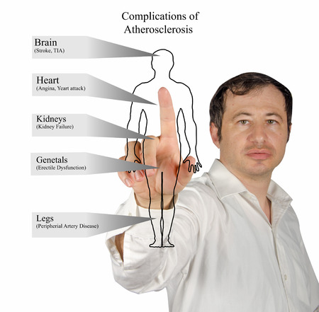 complications: Complications of Atherosclerosis