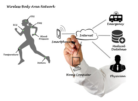 motion sensor: Diagram of telemedicine
