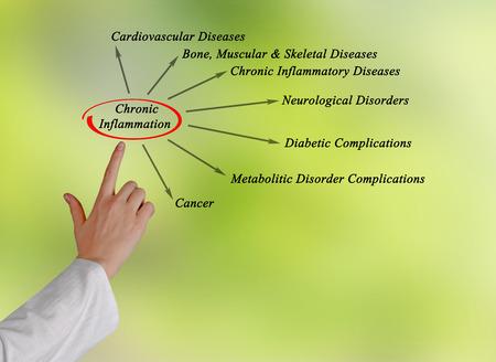 complicación: La inflamaci�n cr�nica Foto de archivo