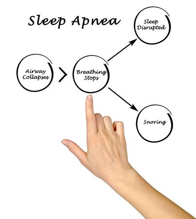 apnea: Sleep Apnea