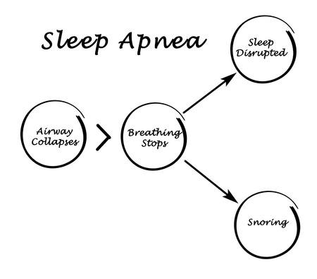 dormir: Apnea Del Sueño Foto de archivo