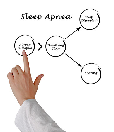apnoe: Schlafapnoe