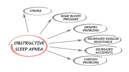 apnea: Obstructive Sleep Apnea Stock Photo