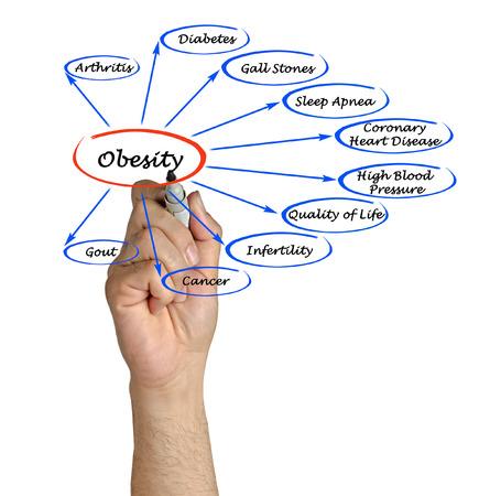 obesidad: Diagrama de la Obesidad Foto de archivo